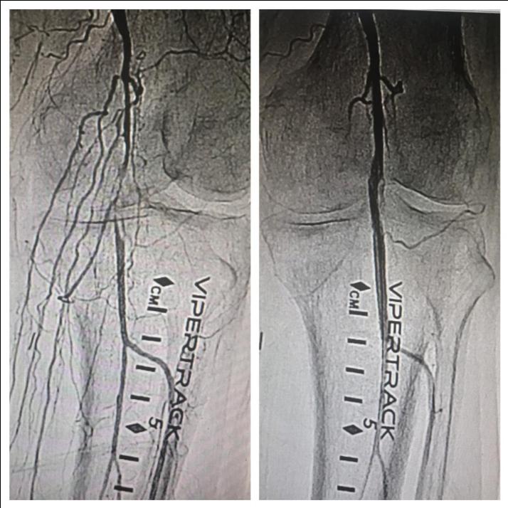 Angiogram Lafayette LA - Diagnostic angiography in Lafayette Louisiana