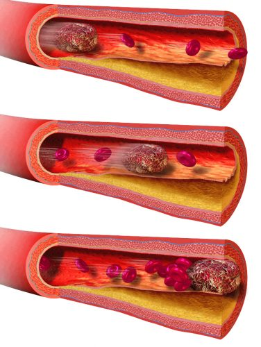 Atherosclerosis treatment in Lafayette LA - blood clot thrombosis example